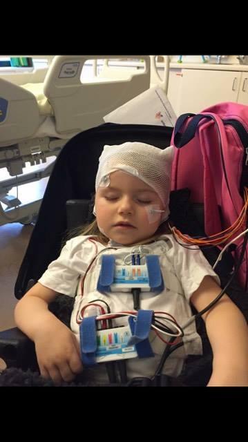 klassieke Rett syndroom epilepsie
