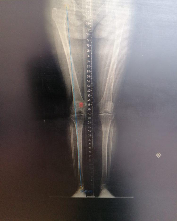 standbeencorrectie osteomie asafwijking operatie revalidatie kraakbeenletsel